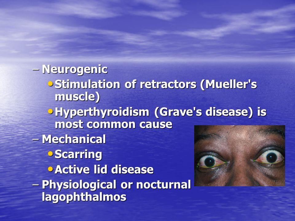 –Neurogenic Stimulation of retractors (Mueller's muscle) Stimulation of retractors (Mueller's muscle) Hyperthyroidism (Grave's disease) is most common