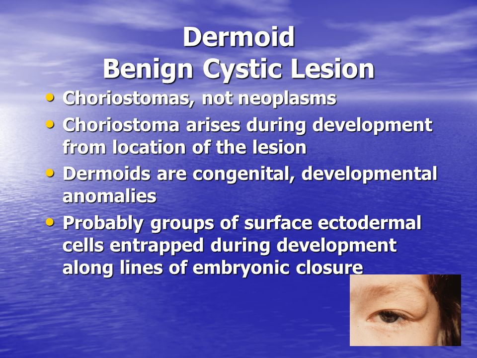 Dermoid Benign Cystic Lesion Choriostomas, not neoplasms Choriostomas, not neoplasms Choriostoma arises during development from location of the lesion