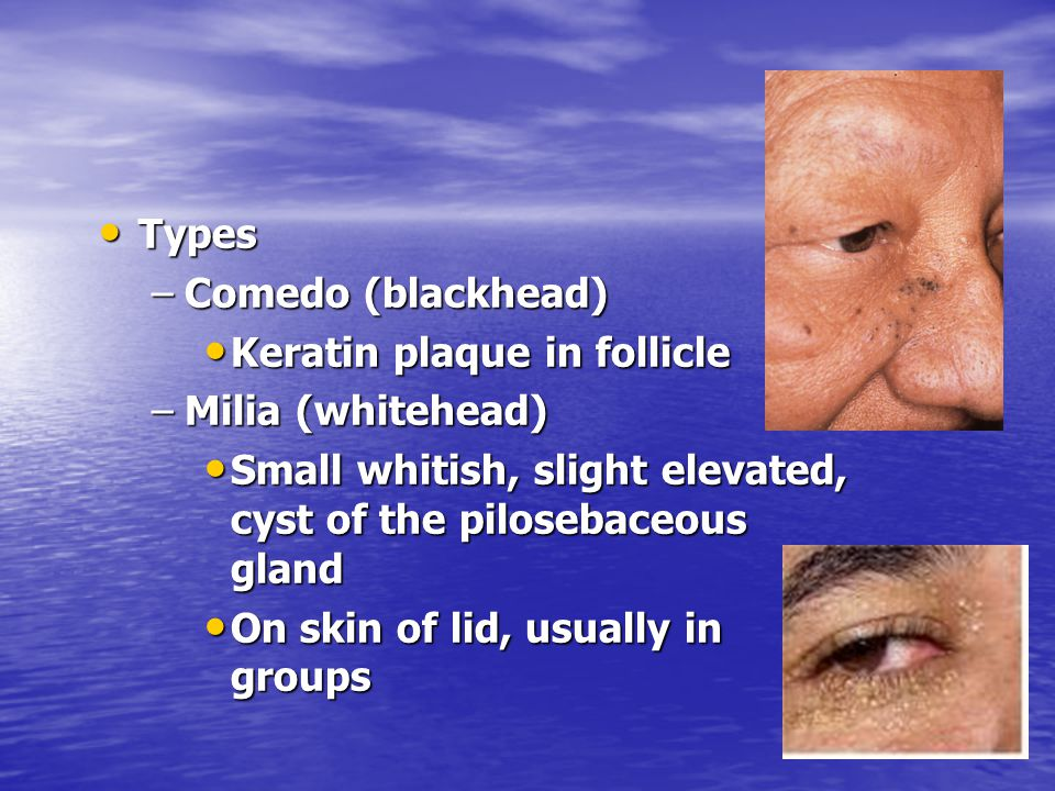 Types Types –Comedo (blackhead) Keratin plaque in follicle Keratin plaque in follicle –Milia (whitehead) Small whitish, slight elevated, cyst of the p