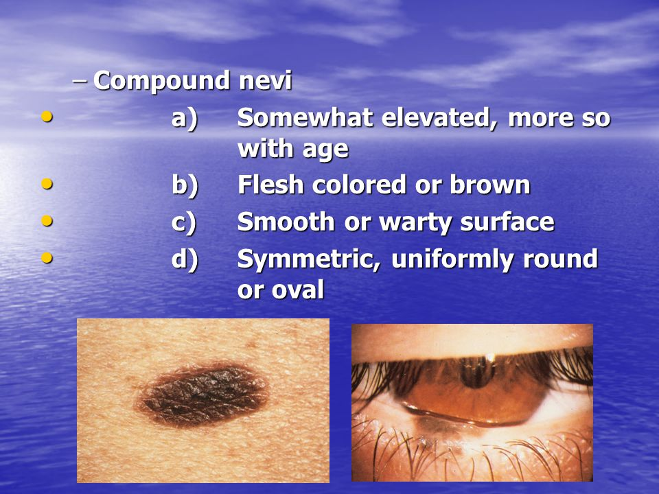 –Compound nevi a)Somewhat elevated, more so with age a)Somewhat elevated, more so with age b)Flesh colored or brown b)Flesh colored or brown c)Smooth