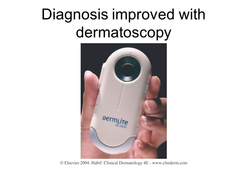 Diagnosis improved with dermatoscopy