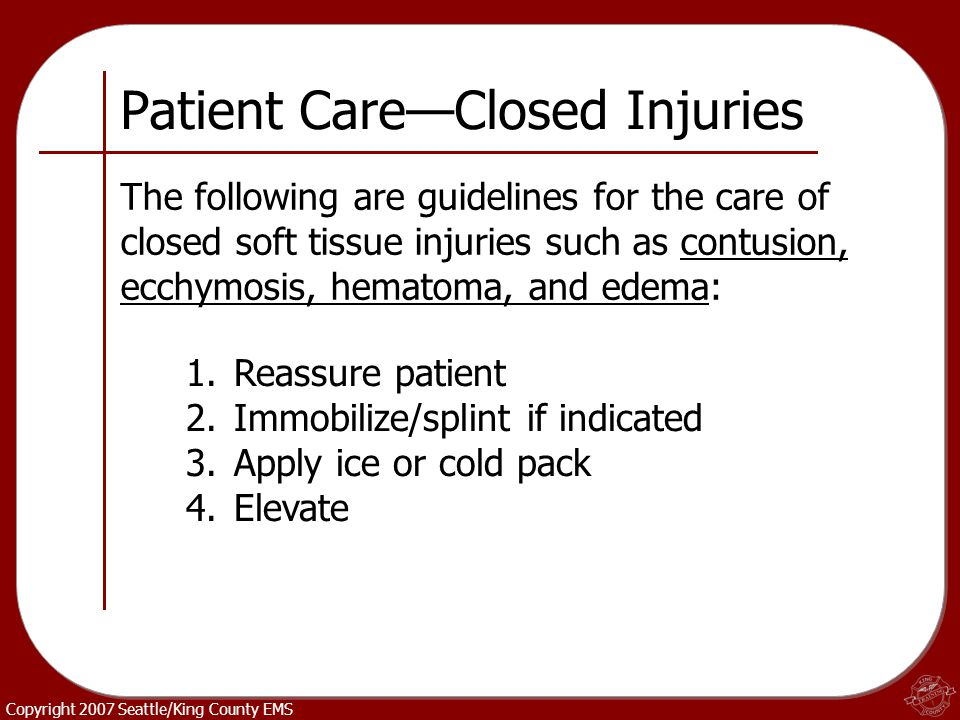 Copyright 2007 Seattle/King County EMS Patient Care—Closed Injuries The following are guidelines for the care of closed soft tissue injuries such as c