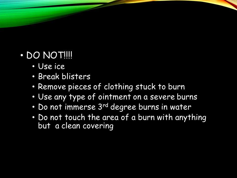 DO NOT!!!.