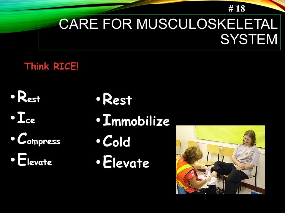 CARE FOR MUSCULOSKELETAL SYSTEM R est I ce C ompress E levate R est I mmobilize C old E levate Think RICE.