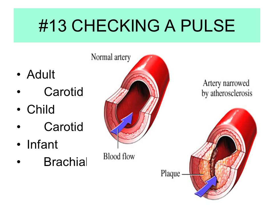 #13 CHECKING A PULSE Adult Carotid Child Carotid Infant Brachial