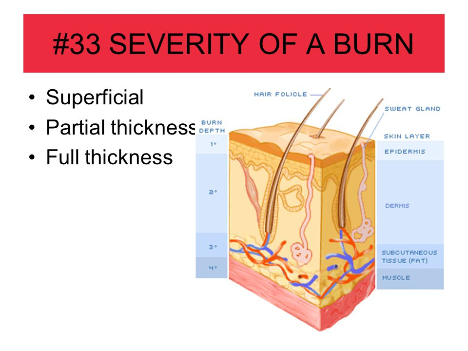#33 SEVERITY OF A BURN Superficial Partial thickness Full thickness