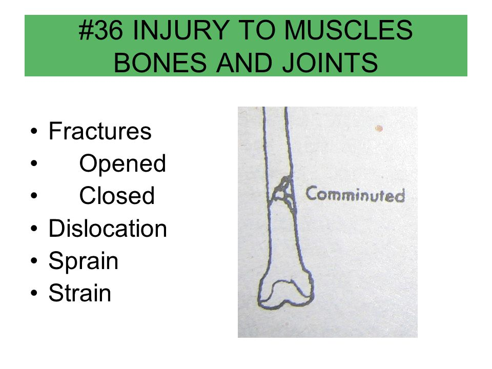 #36 INJURY TO MUSCLES BONES AND JOINTS Fractures Opened Closed Dislocation Sprain Strain