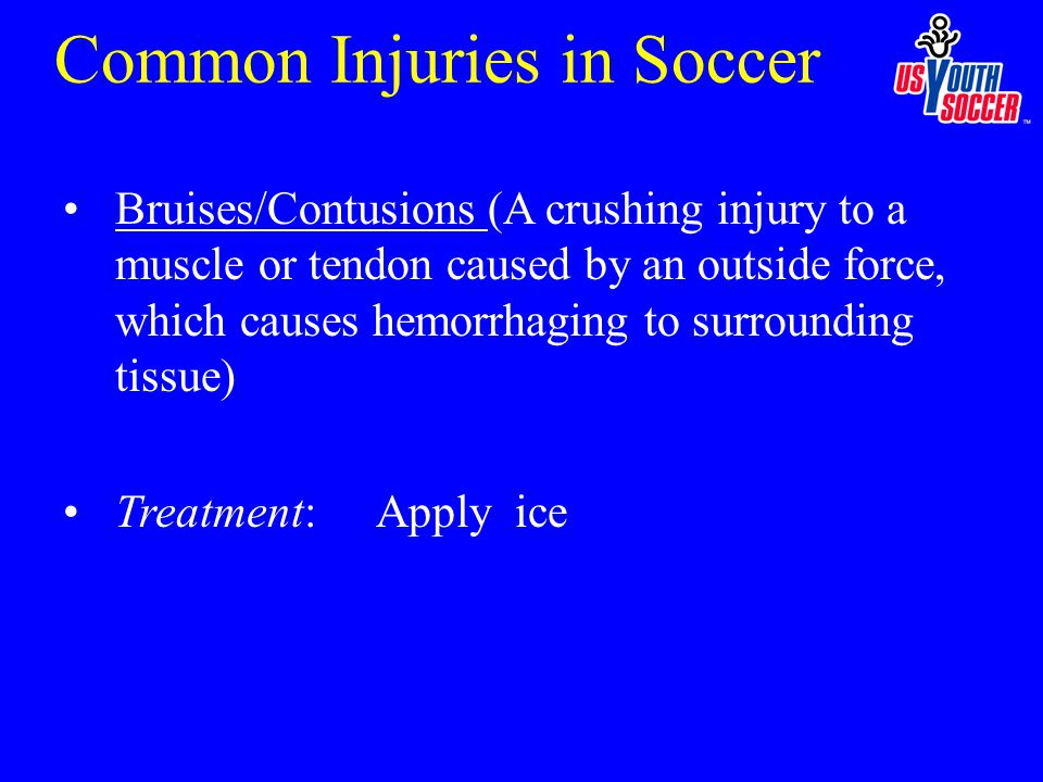 Bruises/Contusions (A crushing injury to a muscle or tendon caused by an outside force, which causes hemorrhaging to surrounding tissue) Treatment: Apply ice Common Injuries in Soccer