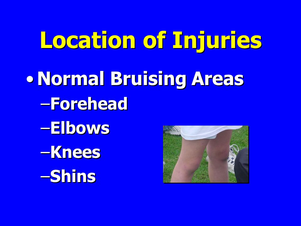 Location of Injuries Normal Bruising Areas –Forehead –Elbows –Knees –Shins Normal Bruising Areas –Forehead –Elbows –Knees –Shins