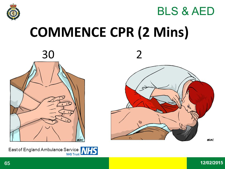 Date East of England Ambulance Service NHS Trust BLS & AED 12/02/2015 65 COMMENCE CPR (2 Mins) 30 2