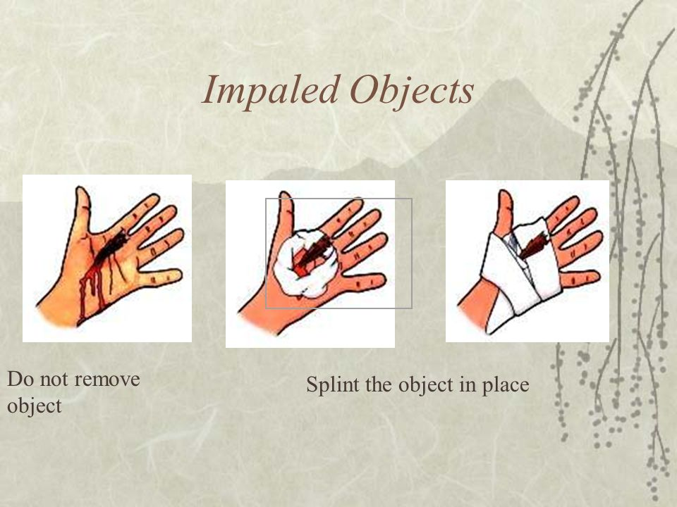 Impaled Objects Do not remove object Splint the object in place