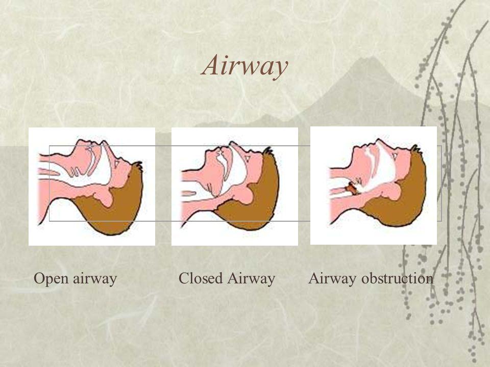 Airway Open airway Closed Airway Airway obstruction