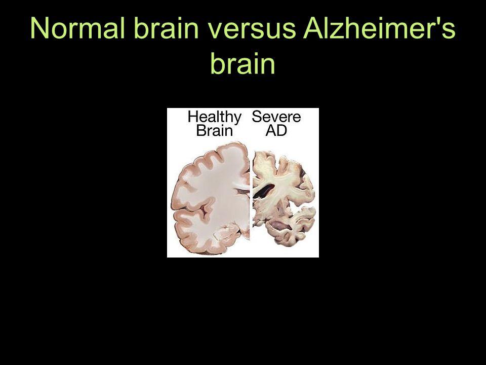 Normal brain versus Alzheimer s brain