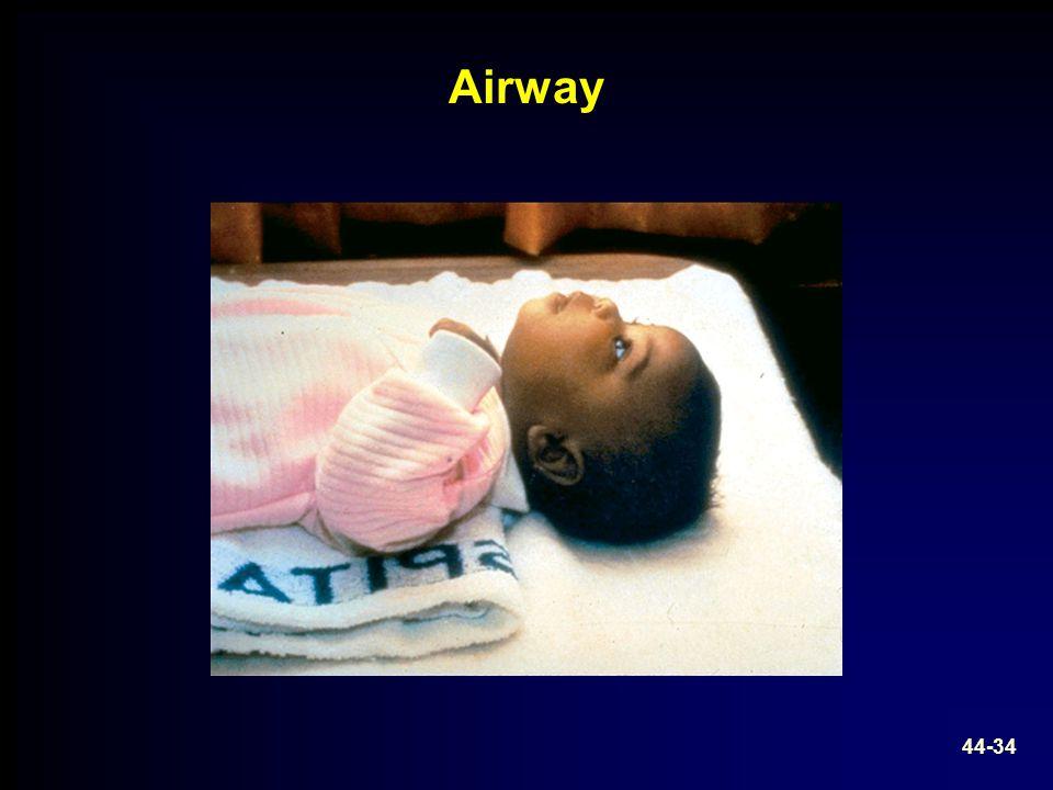 Airway 44-34