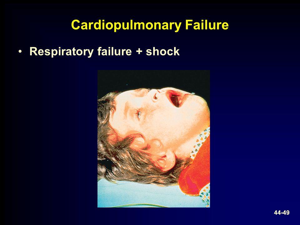 Cardiopulmonary Failure Respiratory failure + shock 44-49