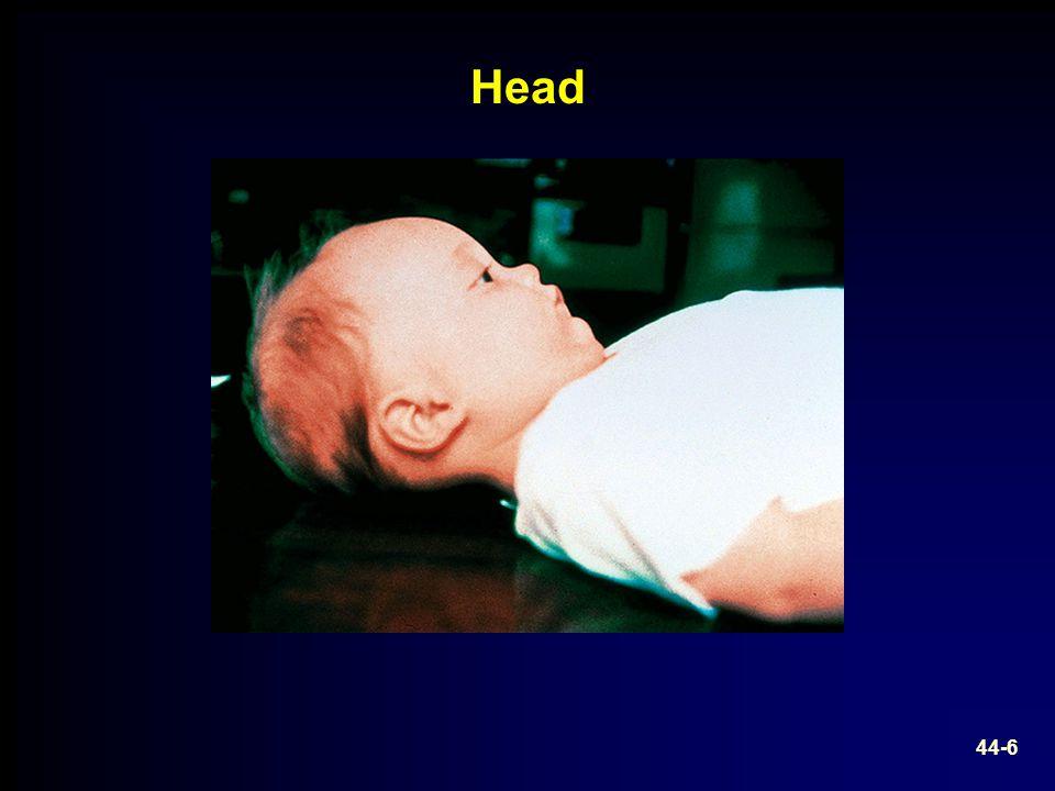 Head 44-6