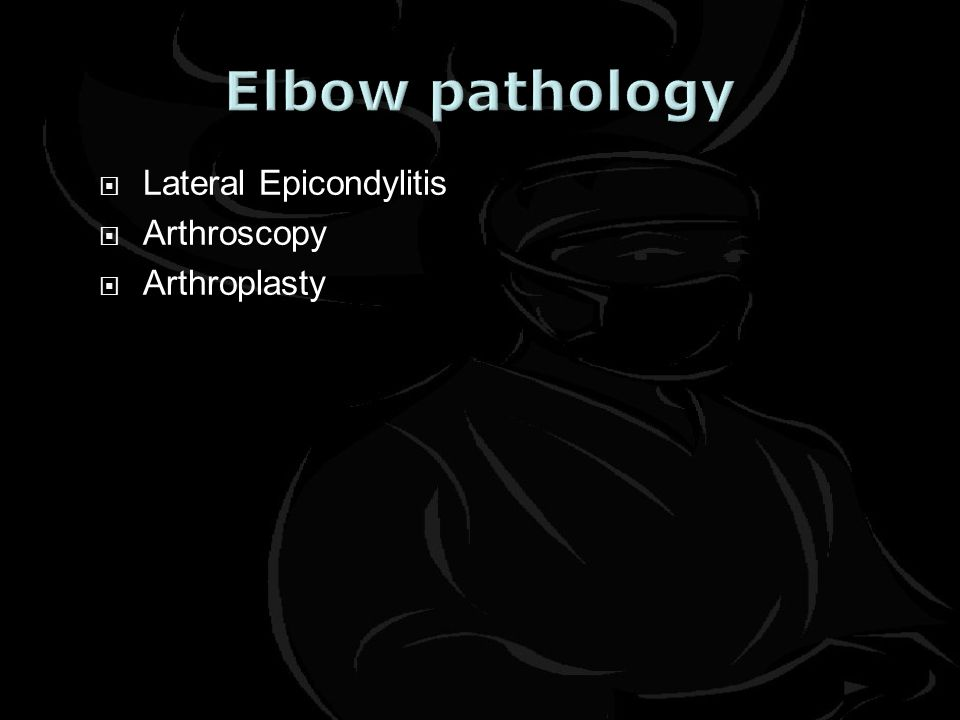  Lateral Epicondylitis  Arthroscopy  Arthroplasty