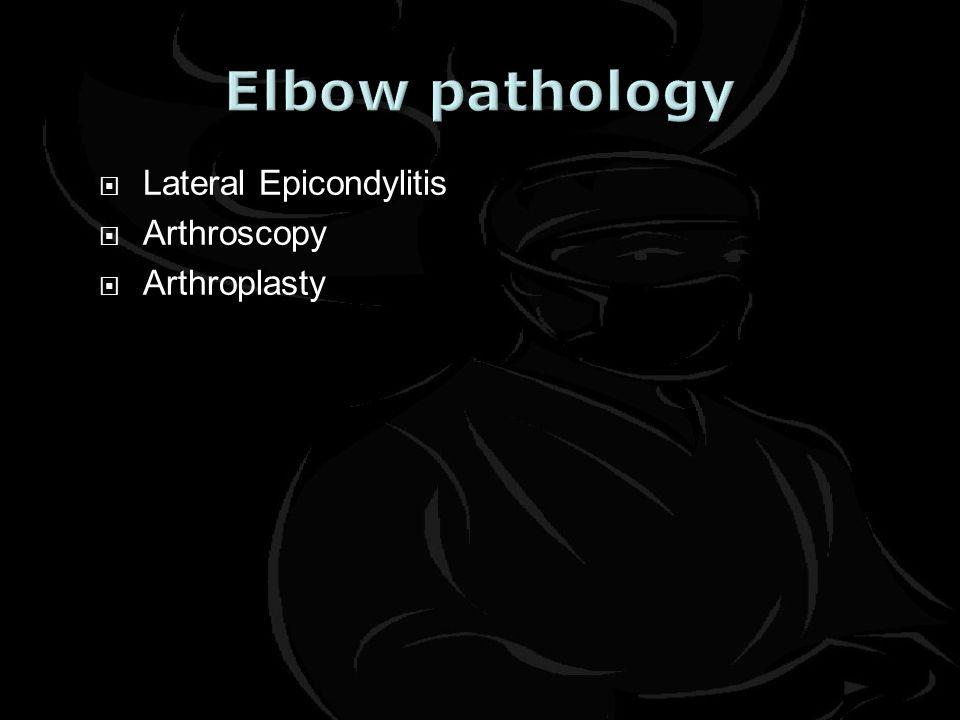  Lateral Epicondylitis  Arthroscopy  Arthroplasty