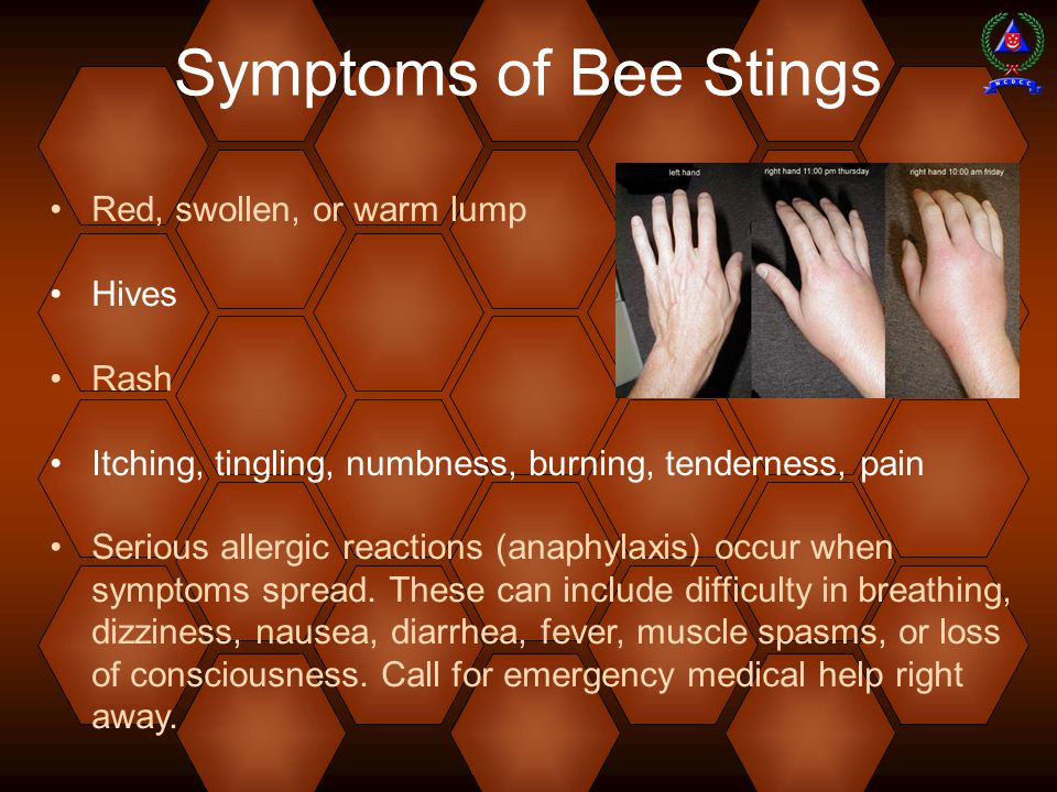 Symptoms of Bee Stings Red, swollen, or warm lump Hives Rash Itching, tingling, numbness, burning, tenderness, pain Serious allergic reactions (anaphylaxis) occur when symptoms spread.