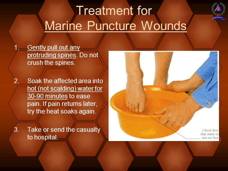 Treatment for Marine Puncture Wounds  Gently pull out any protruding spines.