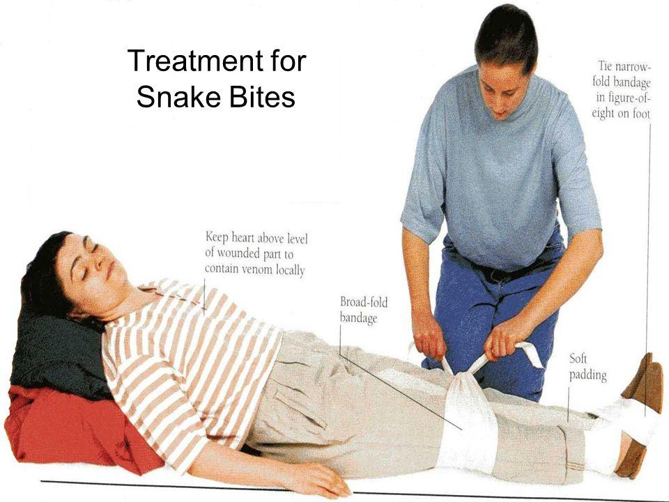 Treatment for Snake Bites