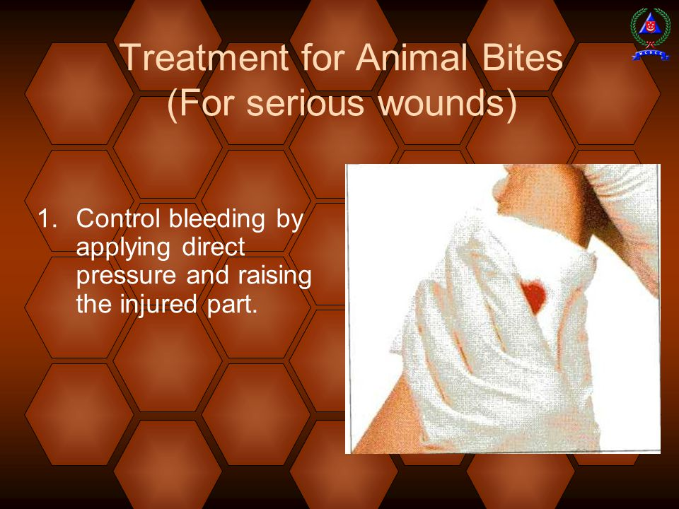 Treatment for Animal Bites (For serious wounds)  Control bleeding by applying direct pressure and raising the injured part.