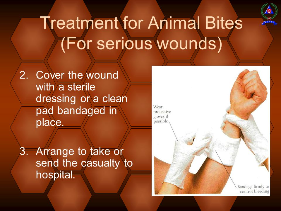  Cover the wound with a sterile dressing or a clean pad bandaged in place.