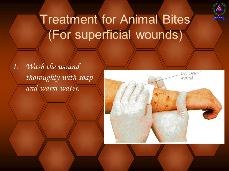 1.Wash the wound thoroughly with soap and warm water.