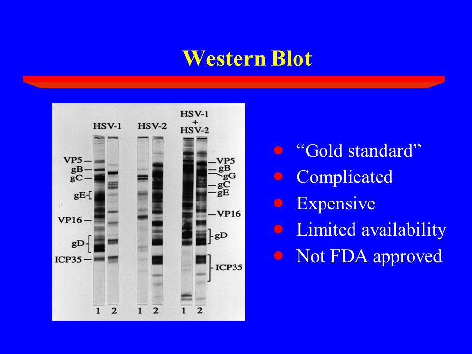 Western Blot  Gold standard  Complicated  Expensive  Limited availability  Not FDA approved