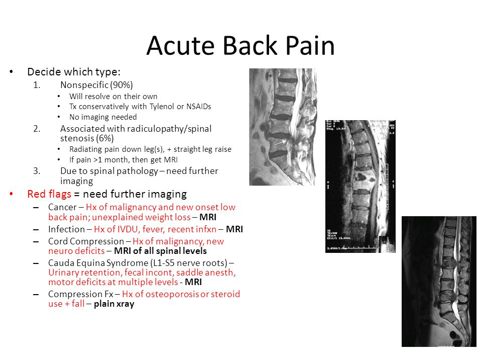 Acute Back Pain Decide which type: 1.Nonspecific (90%) Will resolve on their own Tx conservatively with Tylenol or NSAIDs No imaging needed 2.Associated with radiculopathy/spinal stenosis (6%) Radiating pain down leg(s), + straight leg raise If pain >1 month, then get MRI 3.Due to spinal pathology – need further imaging Red flags = need further imaging – Cancer – Hx of malignancy and new onset low back pain; unexplained weight loss – MRI – Infection – Hx of IVDU, fever, recent infxn – MRI – Cord Compression – Hx of malignancy, new neuro deficits – MRI of all spinal levels – Cauda Equina Syndrome (L1-S5 nerve roots) – Urinary retention, fecal incont, saddle anesth, motor deficits at multiple levels - MRI – Compression Fx – Hx of osteoporosis or steroid use + fall – plain xray