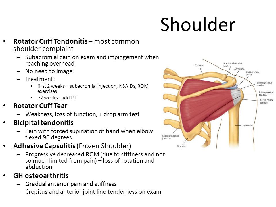 Shoulder Rotator Cuff Tendonitis – most common shoulder complaint – Subacromial pain on exam and impingement when reaching overhead – No need to image – Treatment: first 2 weeks – subacromial injection, NSAIDs, ROM exercises >2 weeks - add PT Rotator Cuff Tear – Weakness, loss of function, + drop arm test Bicipital tendonitis – Pain with forced supination of hand when elbow flexed 90 degrees Adhesive Capsulitis (Frozen Shoulder) – Progressive decreased ROM (due to stiffness and not so much limited from pain) – loss of rotation and abduction GH osteoarthritis – Gradual anterior pain and stiffness – Crepitus and anterior joint line tenderness on exam