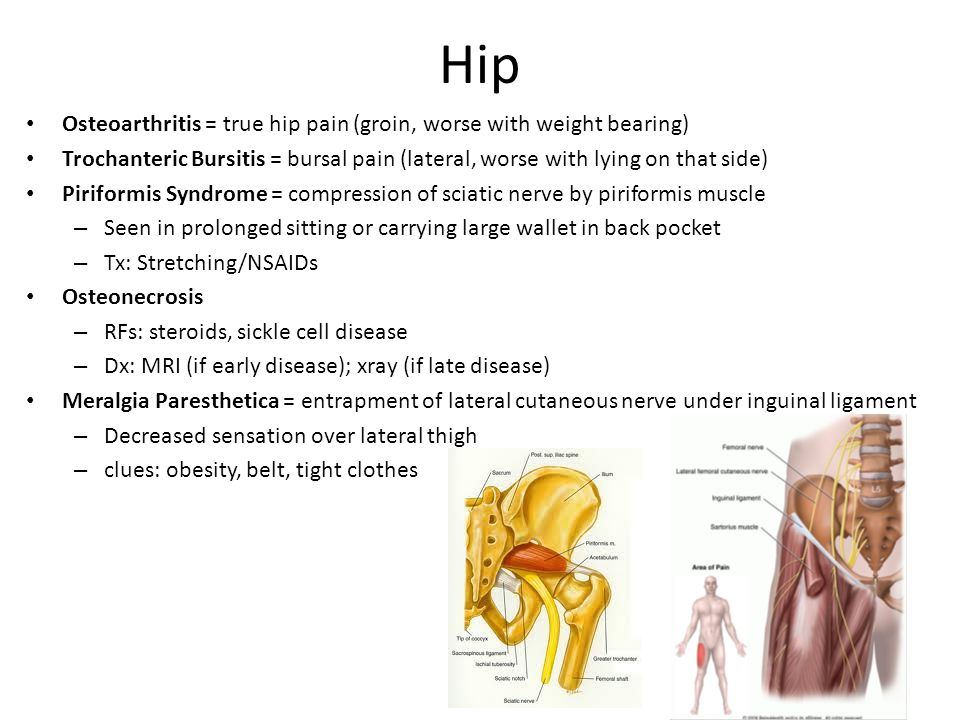 Hip Osteoarthritis = true hip pain (groin, worse with weight bearing) Trochanteric Bursitis = bursal pain (lateral, worse with lying on that side) Piriformis Syndrome = compression of sciatic nerve by piriformis muscle – Seen in prolonged sitting or carrying large wallet in back pocket – Tx: Stretching/NSAIDs Osteonecrosis – RFs: steroids, sickle cell disease – Dx: MRI (if early disease); xray (if late disease) Meralgia Paresthetica = entrapment of lateral cutaneous nerve under inguinal ligament – Decreased sensation over lateral thigh – clues: obesity, belt, tight clothes