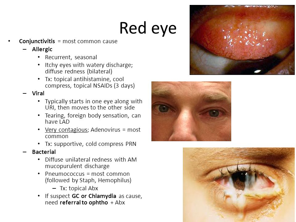 Red eye Conjunctivitis = most common cause – Allergic Recurrent, seasonal Itchy eyes with watery discharge; diffuse redness (bilateral) Tx: topical antihistamine, cool compress, topical NSAIDs (3 days) – Viral Typically starts in one eye along with URI, then moves to the other side Tearing, foreign body sensation, can have LAD Very contagious; Adenovirus = most common Tx: supportive, cold compress PRN – Bacterial Diffuse unilateral redness with AM mucopurulent discharge Pneumococcus = most common (followed by Staph, Hemophilus) – Tx: topical Abx If suspect GC or Chlamydia as cause, need referral to ophtho + Abx