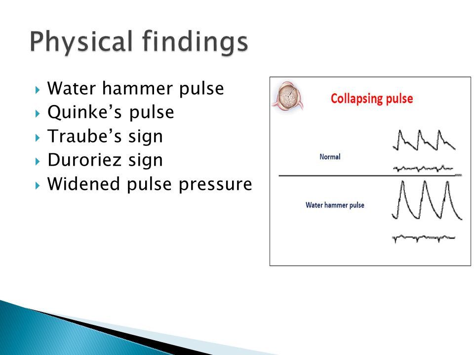  Water hammer pulse  Quinke's pulse  Traube's sign  Duroriez sign  Widened pulse pressure