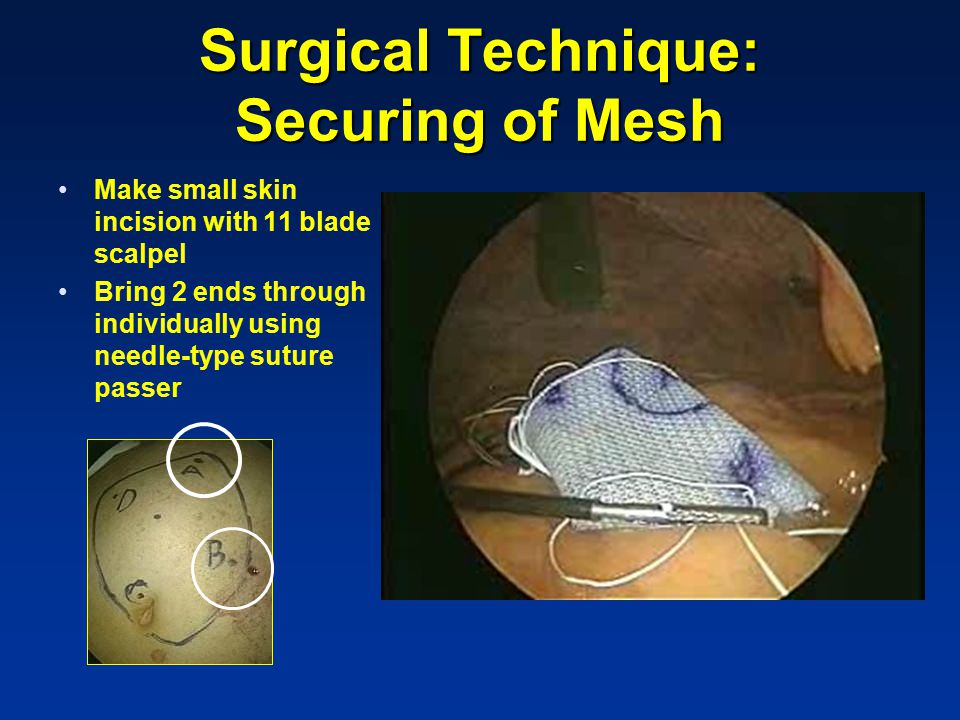 Surgical Technique: Securing of Mesh Make small skin incision with 11 blade scalpel Bring 2 ends through individually using needle-type suture passer