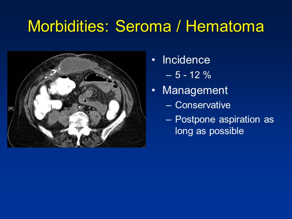 Morbidities: Seroma / Hematoma Incidence –5 - 12 % Management –Conservative –Postpone aspiration as long as possible
