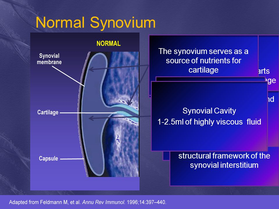Normal Synovium Composed primarily of type II collagen and proteoglycans Enable low friction, high velocity movement between bones Absorbs considerable impact and stress Collagen fibrils comprises 90% of the fibrillar network Provides tensile strength and provides the framework in which proteoglycan and chondrocytes are embedded Aggrecan is the major proteoglycan that imparts elasticity to articular cartilage The synovium serves as a source of nutrients for cartilage These constitutes the structural framework of the synovial interstitium Synovial cells synthesize joint lubricant such as hyaluronic acid, collagens and fibronectin Chonsynthesize proteases and their inhibitors docytes secrete and in matrix turnover Synovial Cavity 1-2.5ml of highly viscous fluid