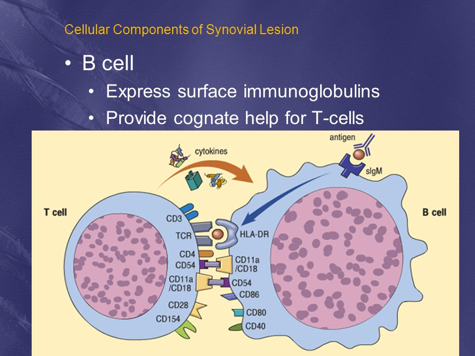 Cellular Components of Synovial Lesion T cells B cells B cell Express surface immunoglobulins Provide cognate help for T-cells