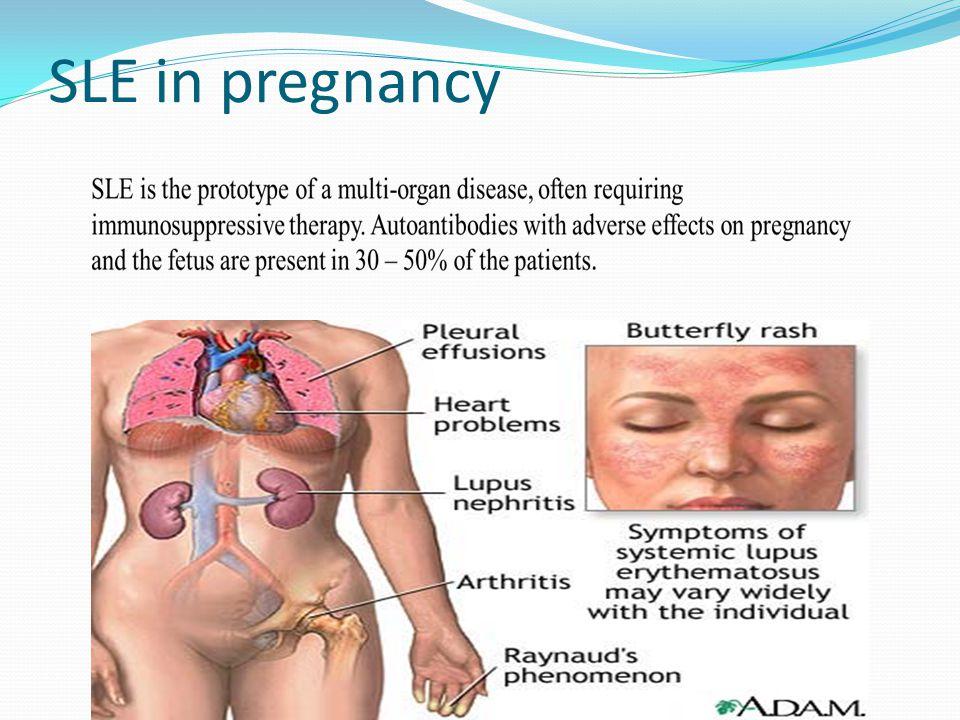 SLE in pregnancy