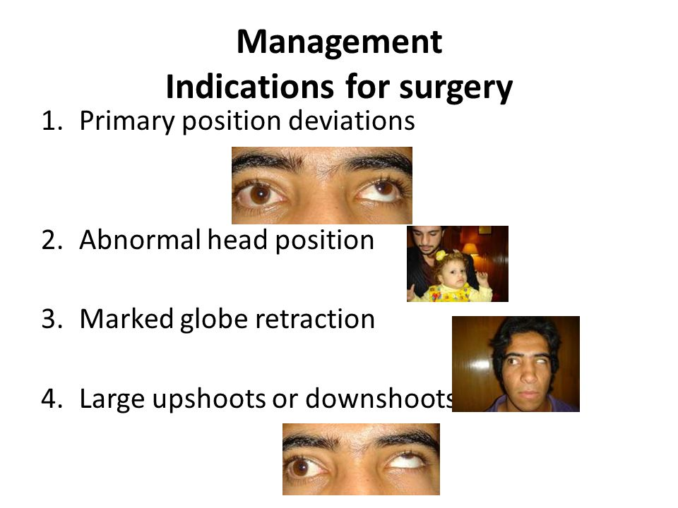 Management Indications for surgery 1.Primary position deviations 2.Abnormal head position 3.Marked globe retraction 4.Large upshoots or downshoots