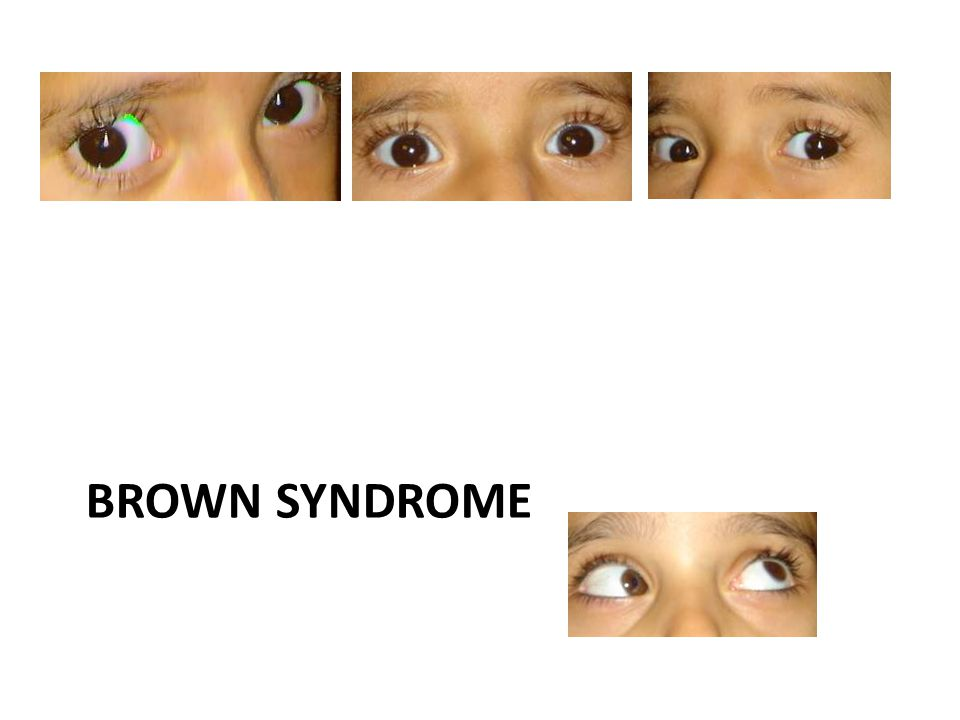 BROWN SYNDROME