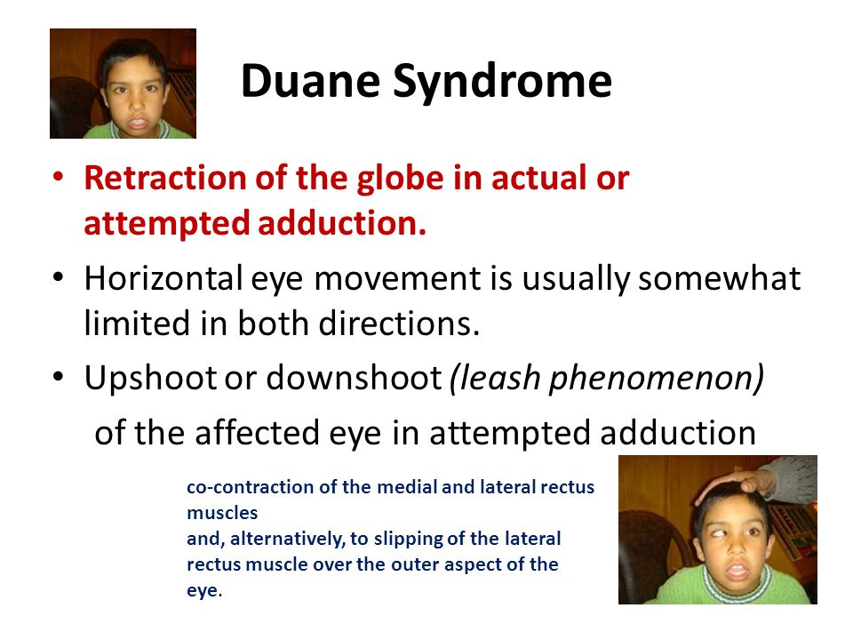 Duane Syndrome Retraction of the globe in actual or attempted adduction. Horizontal eye movement is usually somewhat limited in both directions. Upsho