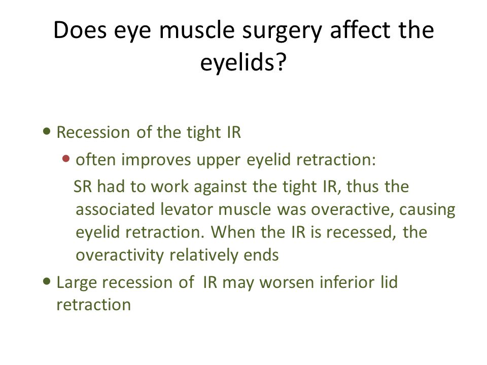 Recession of the tight IR often improves upper eyelid retraction: SR had to work against the tight IR, thus the associated levator muscle was overacti