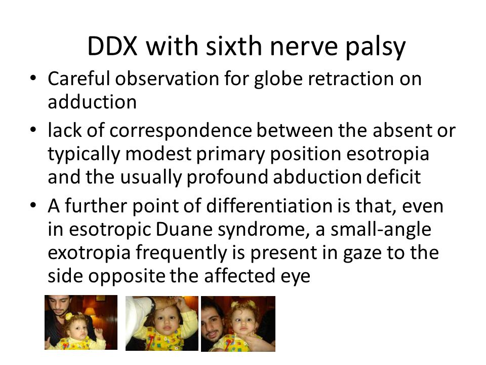 DDX with sixth nerve palsy Careful observation for globe retraction on adduction lack of correspondence between the absent or typically modest primary