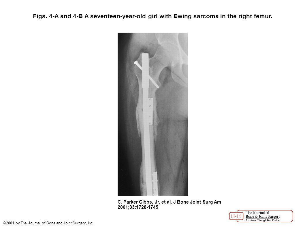 Figs. 4-A and 4-B A seventeen-year-old girl with Ewing sarcoma in the right femur. C. Parker Gibbs, Jr. et al. J Bone Joint Surg Am 2001;83:1728-1745