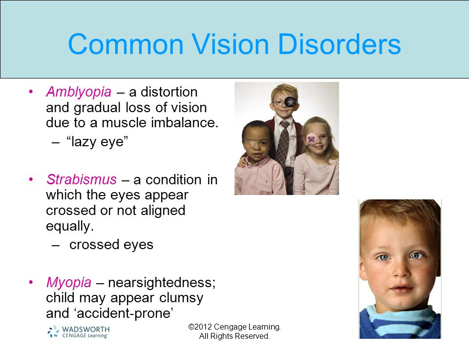 ©2012 Cengage Learning. All Rights Reserved. Common Vision Disorders Amblyopia – a distortion and gradual loss of vision due to a muscle imbalance. –""