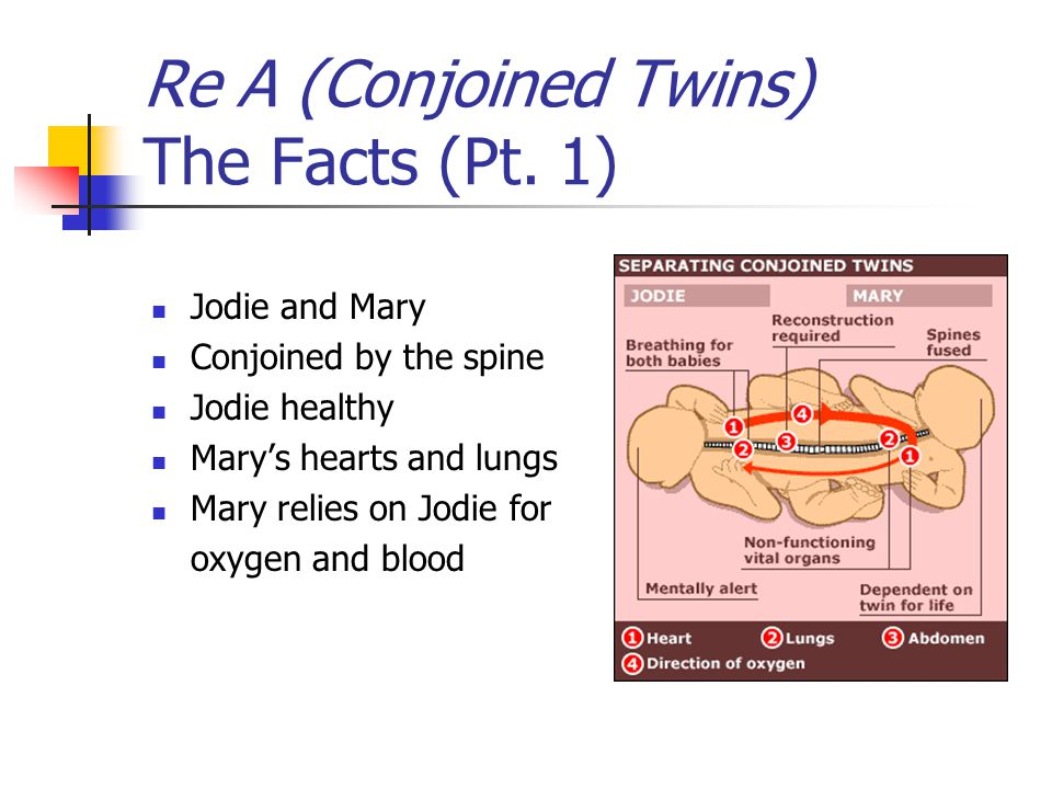 Re A (Conjoined Twins) The Facts (Pt. 1) Jodie and Mary Conjoined by the spine Jodie healthy Mary's hearts and lungs Mary relies on Jodie for oxygen a