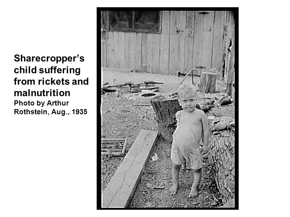 Sharecropper's child suffering from rickets and malnutrition Photo by Arthur Rothstein, Aug., 1935