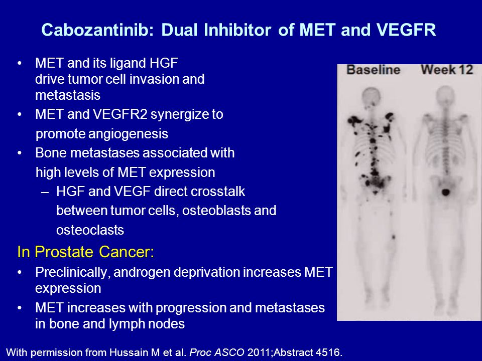 Cabozantinib: Dual Inhibitor of MET and VEGFR MET and its ligand HGF drive tumor cell invasion and metastasis MET and VEGFR2 synergize to promote angiogenesis Bone metastases associated with high levels of MET expression –HGF and VEGF direct crosstalk between tumor cells, osteoblasts and osteoclasts In Prostate Cancer: Preclinically, androgen deprivation increases MET expression MET increases with progression and metastases in bone and lymph nodes With permission from Hussain M et al.
