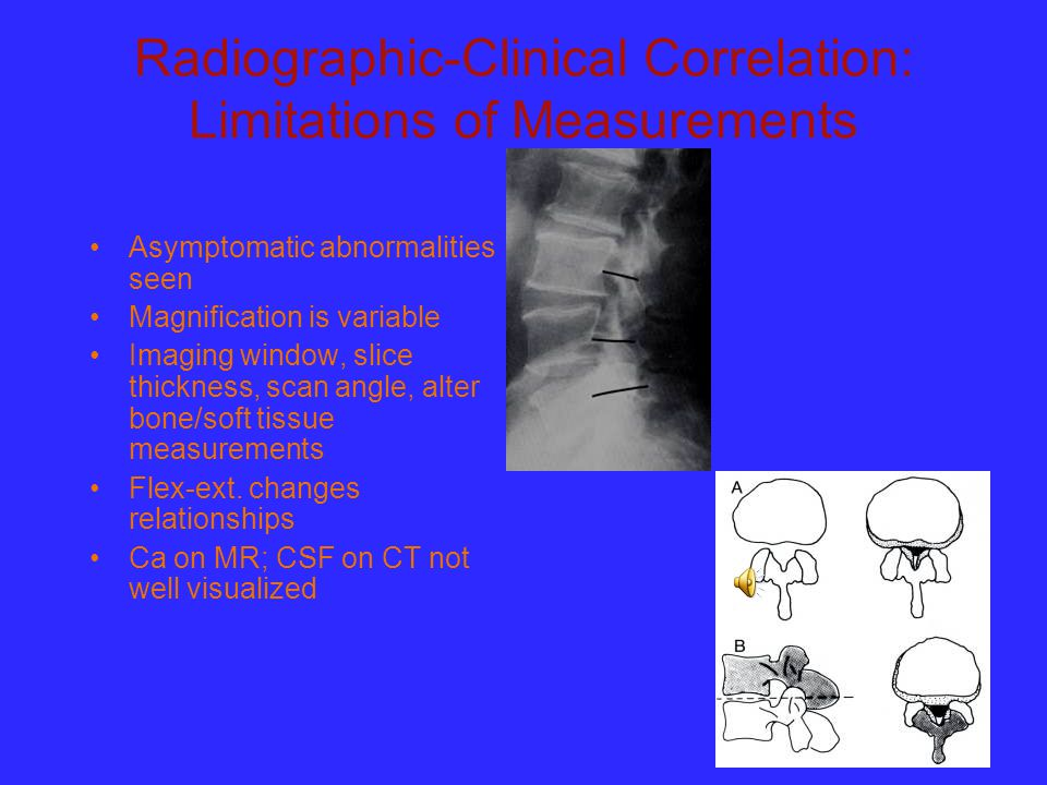 Radiographic-Clinical Correlation: Limitations of Measurements Asymptomatic abnormalities seen Magnification is variable Imaging window, slice thickne